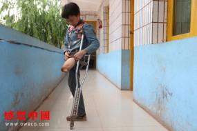 先天残疾的学生渴望得到社会资助,读书才是唯一的希望!
